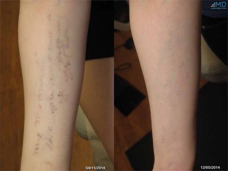 72 best images about laser treatments on pinterest laser for Picosure tattoo removal maryland