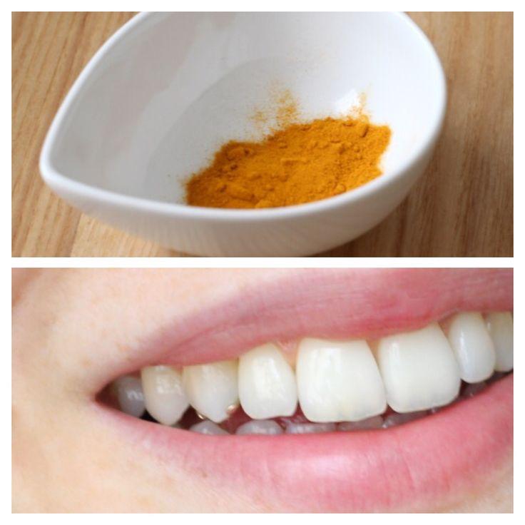 Come Sbiancare i Denti in modo naturale. Scopri le beauty news e le recensioni video a cura di MisStrawberryFields