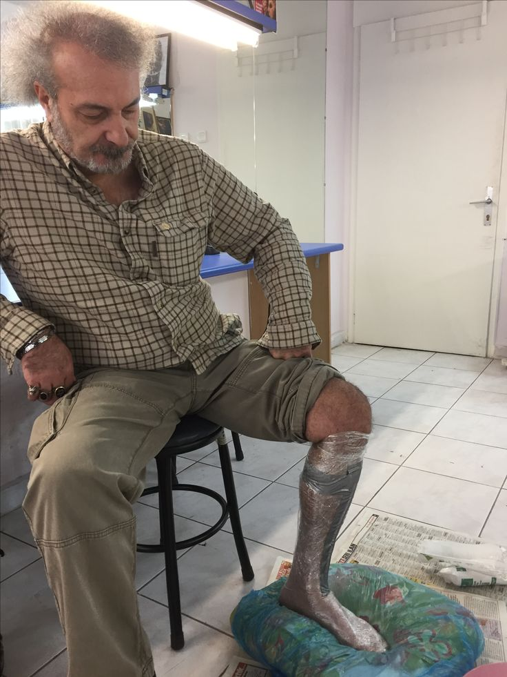 Making a cast from his leg for Captain Ahab- Moby- dick.