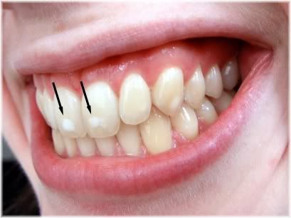 White spots on the teeth can indicate toxic levels of fluoride in the body. Iodine is helpful in detoxing fluoride from body.