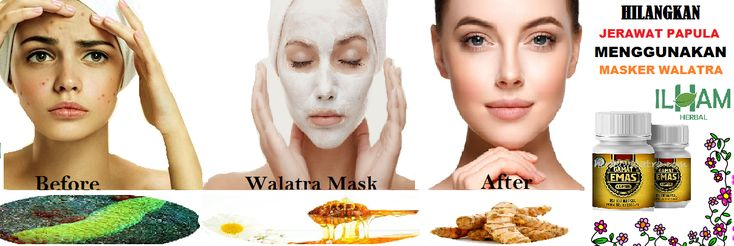 Dapatkan Masker Herbal Hilangkan Jerawat Papula Terampuh Dengan Masker Walatra Gamat Kapsul yang terbukti Ampuh hilangkan jerawat papula tanpa efek samping.