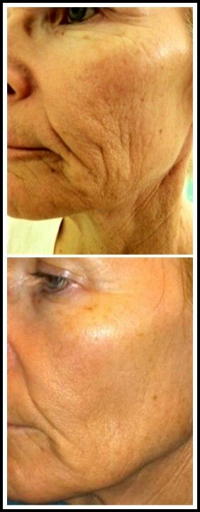 RitaRoseWilson.Nerium.com ritarosewilson@yahoo.com  Now tell me, where do you think these photos are coming from? They are happy customers having tremendous results from using Nerium Age Defying Skin treatment.  This product is working even on deep lines and wrinkles and by applying topically only.  No injections or surgery or by laser.  And you can get this product for free by sharing it with 3 people.  Please contact me for information that is genuine and correct.