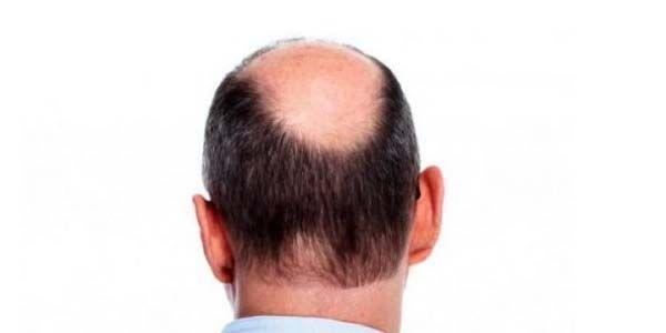 10 Merk Hair Tonic Obat Penumbuh Rambut Botak - Rahman Auf