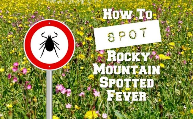 What Is Rocky Mountain Spotted Fever?