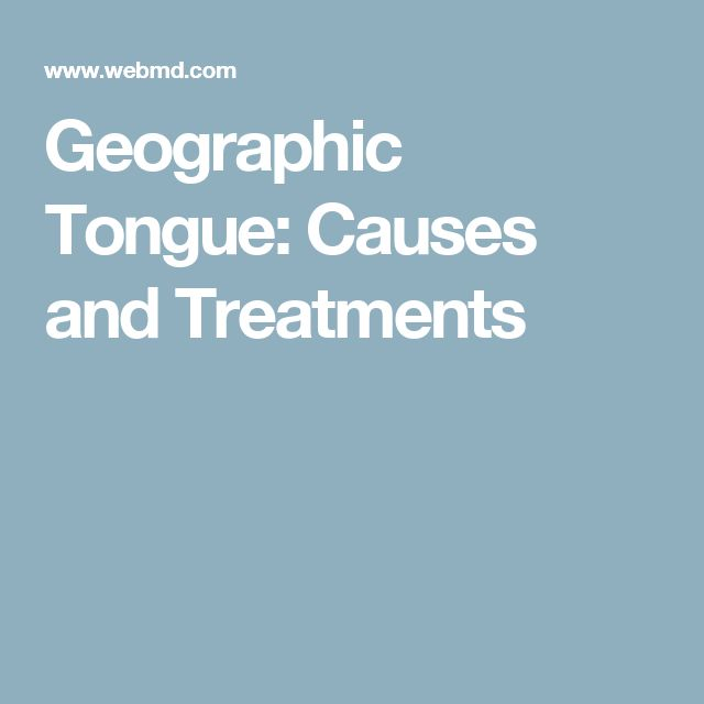 Geographic Tongue: Causes and Treatments
