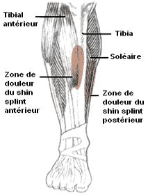 Périostite tibiale : une solution http://www.wanarun.net/blog/periostite-tibiale-une-solution-29133.html