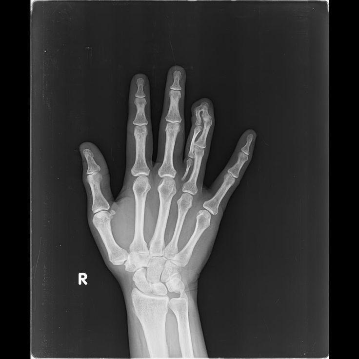 Central polysyndactyly | Radiology Case | Radiopaedia.org