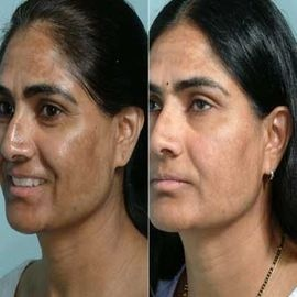 Tips to Prevent Pigmentation Problems:  •Drink at least ten glasses of water in a day. Drink two glasses of water in the morning when you wake up, before brushing your teeth.   •Try applying lime (nimbu) to the discoloured area. Do this everyday, and wash off after 15 minutes. You could also apply lime to the affected area at night once in a while, and wash off in the morning when you bathe.