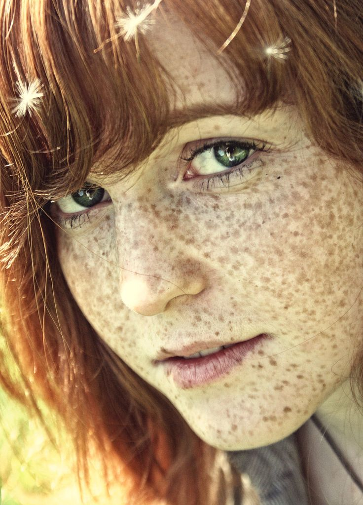Redhead tall freckles — photo 11