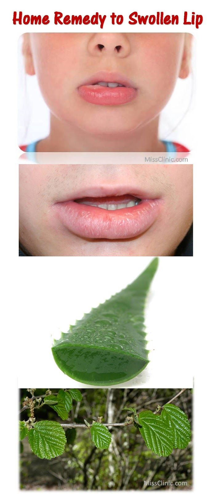 Cause and Remedy to Swollen Bottom Lip