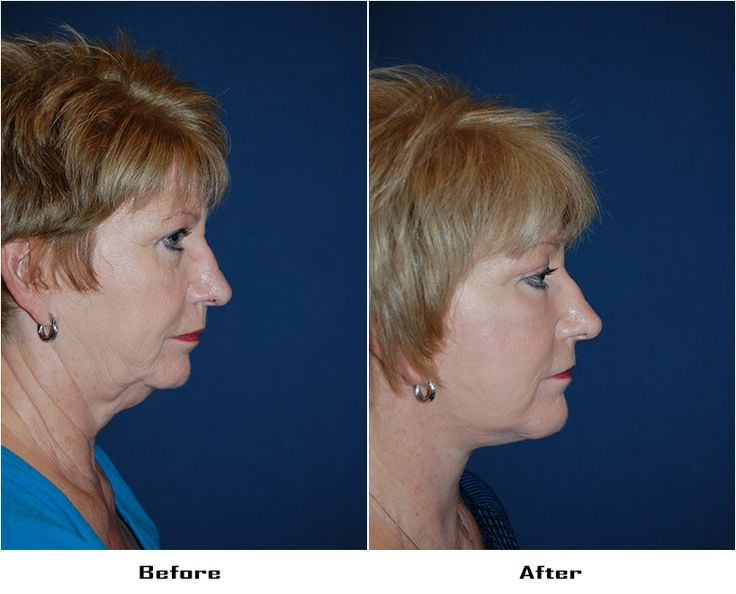 Procedures Performed:      Endoscopic Brow Lift: 3/4 Brow Lift     Eyelid: Lower Lid Blepharoplasty with SOOF     Deep Plane Facelift     Revision Rhinoplasty – Cartilage Graft to Nose     CO2 Laser Resurfacing: Eyes and Mouth     Dr. Freeman's Makeovers