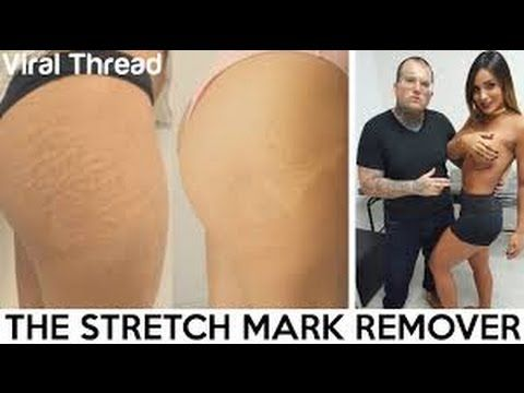 Guy Removes Stretch Marks With Tattoos | Viral Thread