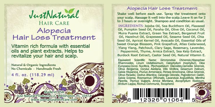 Alopecia Hair Loss Treatment - botanical Treatments Get To The Root.