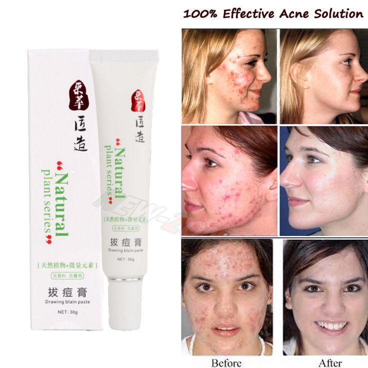 100% efficace acne crema donna uomo brufoli veloce heal cicatrici da acne riparazione macchie rosse viso liscio cura naturale della pianta