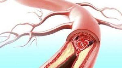 Comment purifier ses artères obstruées grâce à cette astuce venue d'Allemagne