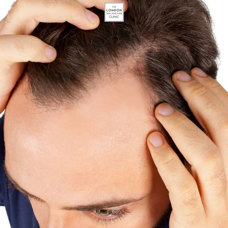 how to stop alopecia itching