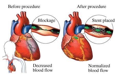 coronary artery blockage understanding stents and