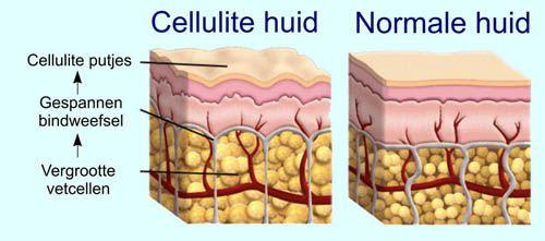 Doorsnede cellulite huid