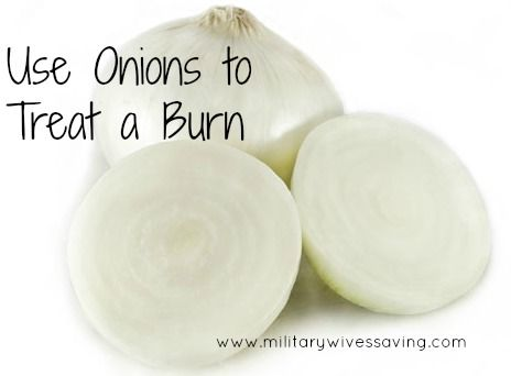 How To Use an Onion to Treat Burns