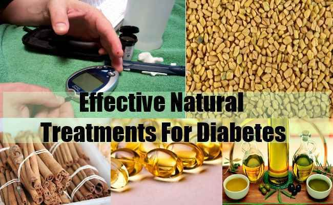 Diabetes Mellitus Type 2 >>> More info could be found at the image url.