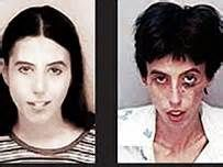 Crack Cocaine Before And After - Bing Images | *ADDICTIONS ...