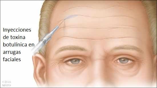 Lo que debes conocer del uso de la toxina botulínica para las arrugas - http://plenilunia.com/belleza-saludable/lo-que-debes-conocer-del-uso-de-la-toxina-botulinica-para-las-arrugas/43490/