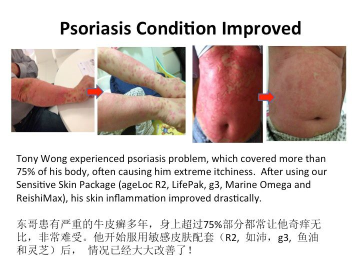 Recent research shows that hypnosis helps psoriasis sufferers 3
