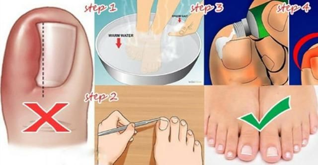 Here S An Easier Way To Get Rid Of Ingrown Toe Nails Without