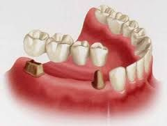 Dentist Cranbourne West Try our dentist Cranbourne West services at affordable prices. You can find all dental problems like bridges, crowns, filling, RCT and dentures, tooth replacement at our clinic. For more information please visit our website http://carrumdownsdentalcare.com.au/cranbourne-west/