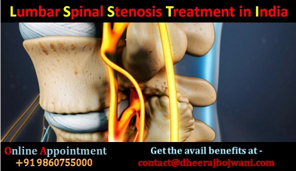 Low back pain is a very common problem these days and the prime cause for this pain is the lumbar spinal stenosis.