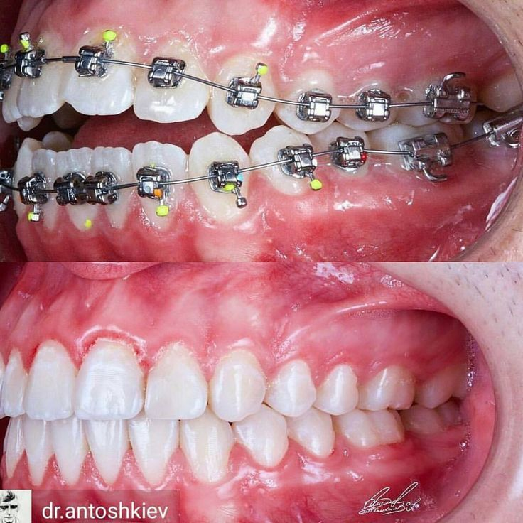 "31 Likes, 1 Comments - @current.dentistry on Instagram: ""@dr.antoshkeiv #orthodontics #openbite #treatment #teeth#alignment #healthygums #Dr.bach #Dr.k""  http://getfreecharcoaltoothpaste.tumblr.com"
