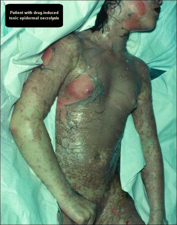 skinny busty nude
