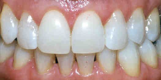 Dentist Teeth Whitening Check more at http://www.healthyandsmooth.com/teeth-whitening/dentist-teeth-whitening/