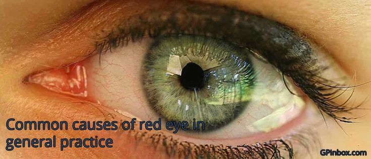 As general practitioners, we encounter patients presenting with red eyes on a regular basis. It is important and crucial to be able to offer a differential diagnosis and exclude red flag conditions. Some examination may required specialized equipment or tools while some presentation may require an optometrist or opthalmological review. Patient presenting to you with a red eye may have other symptoms. These symptoms may occur in the eye itself causing watering or thick discharge, blood shot…