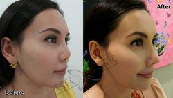 Asia Clinic-Cosmetic Plastic Surgery Bangkok, Thailand - The Best Nose Augmentation In Thailand