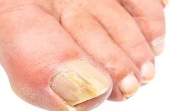 Laserterapia para tratamento de micoses de unha, calosidades, cuidados especiais no pé diabético