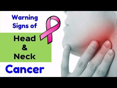 7 Major symptoms of head and neck cancer in your body   Early Signs of Cancer - WATCH THE VIDEO   *** signs of throat cancer ***   You Need to Know 7 Major symptoms of head and neck cancer in your body. Your body indicates the warning signs of cancer.  In this video summarise common signs of head and neck cancer. Head and neck cancers are known to be a group of cancers that usually start...
