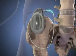 Nerve entrapment Symptoms, Diagnosis, Treatments and Causes - RightDiagnosis.com