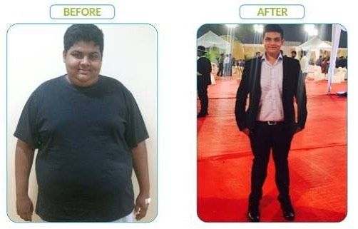 #DidYouKnow Bariatric surgery is a boon for #obese #teenagers  Learn more about the CMS TEENS programme here - http://ift.tt/2aeyQiX #instamood #instaday #instahealth #instagramers #instalike #health #healthytransformations #transformationtuesday #instafollow #beforeandafterweightloss #beforeandafter #beforeafter #teenageobesity #obesity #weightlossjourney #weightloss #weightlossmotivation #weightlosstransformation #weightlossstory #weightlossdiary