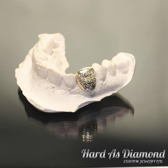 Single iced out tooth