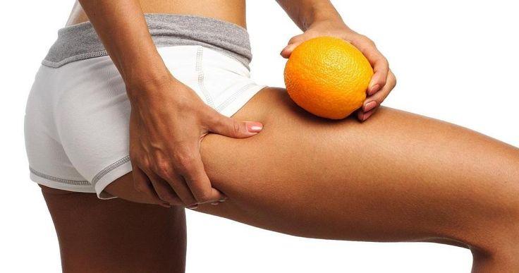 5 tratamientos naturales contra la celulitis infecciosa en las piernas