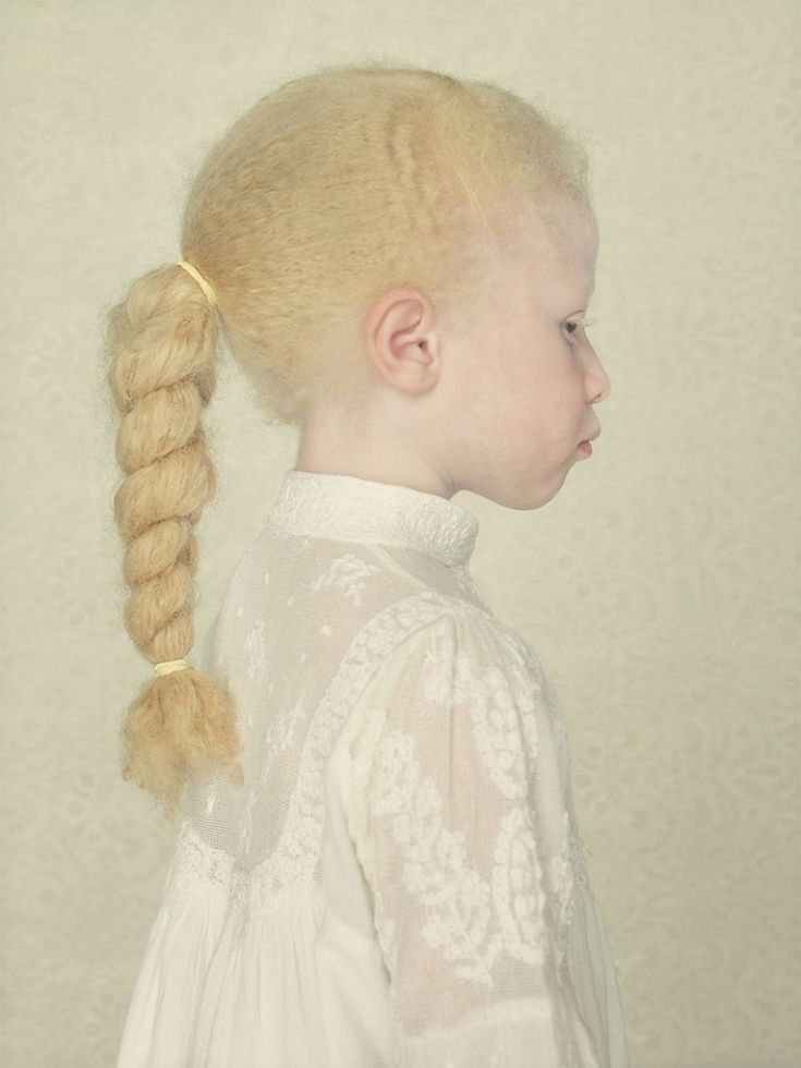17 Best images about beautiful albino people! on Pinterest ...