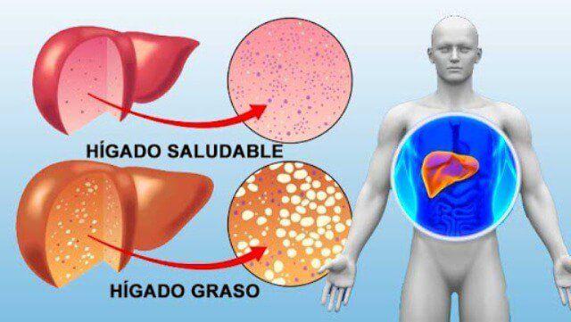 ¡Con éste potente batido limpiarás tu hígado y bajarás de peso en 72 horas!