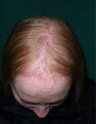 Pregnancy Hair Loss