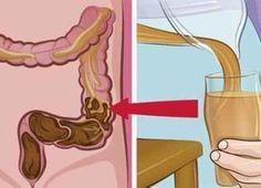 Deze fatale voedingsfouten kunnen ervoor zorgen dat je meer dan 9 kg troep in je lichaam opstapelt. Zo kun je je dikke darm redden!