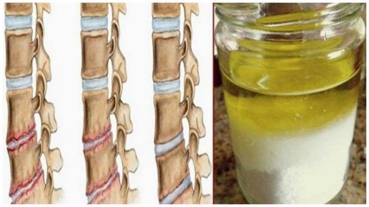 restaurar las articulaciones, articulaciones, tendones, cartilagos, presion sanguinea, huesos, dolor en los huesos, circulacion, remedio natural, receta casera