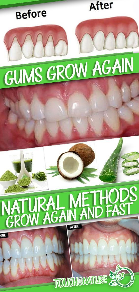 Make Receding Gums Grow Again And Fast With These Natural Methods – Touch Of The Nature