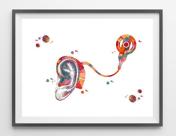 Cochlear Implant Watercolor Print Audiology Poster Inner Ear