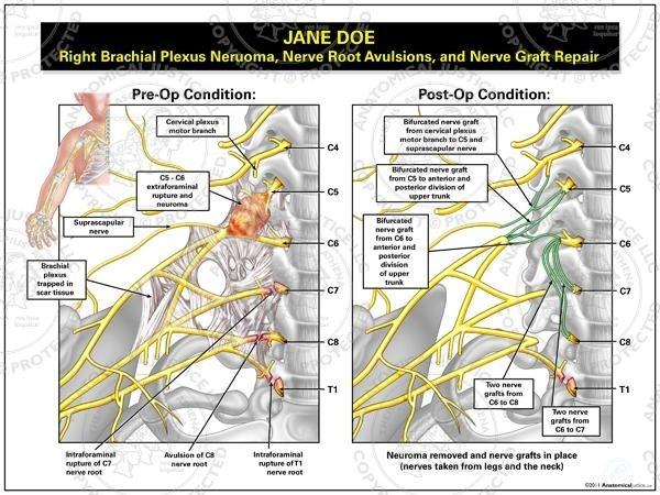 brachial plexus diagram quiz - photo #18