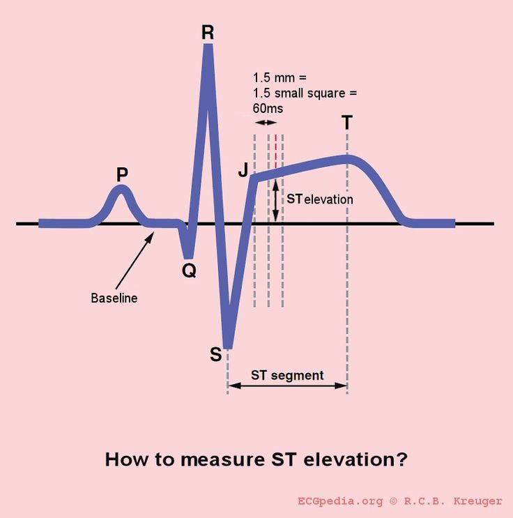 st elevation | In this diagram ST elevation is measured 60ms or 80ms after the J ...